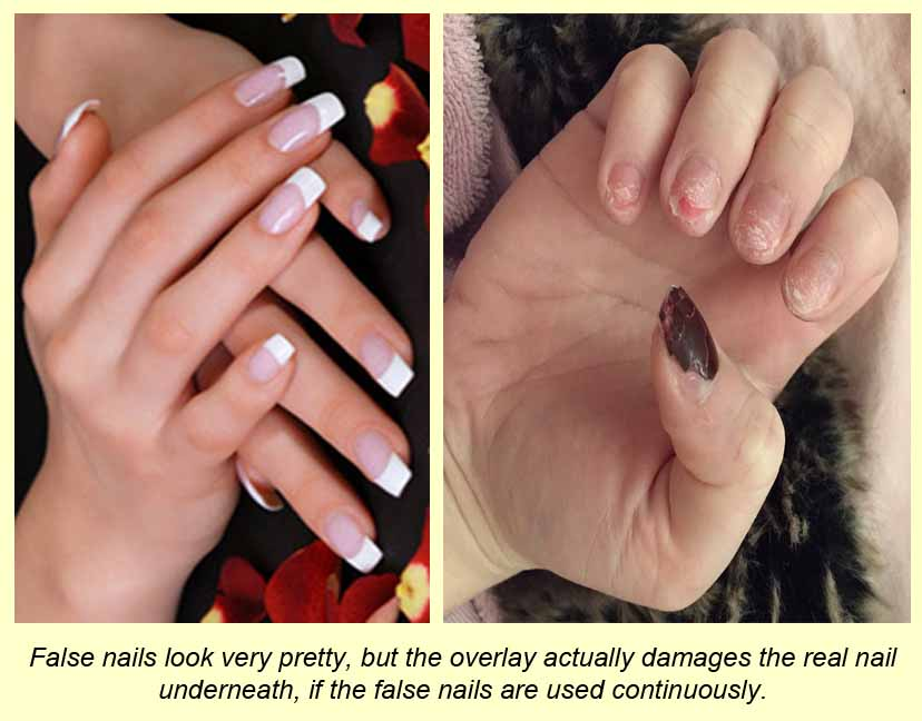 False nails overlay real ones and cause damage to the real nails